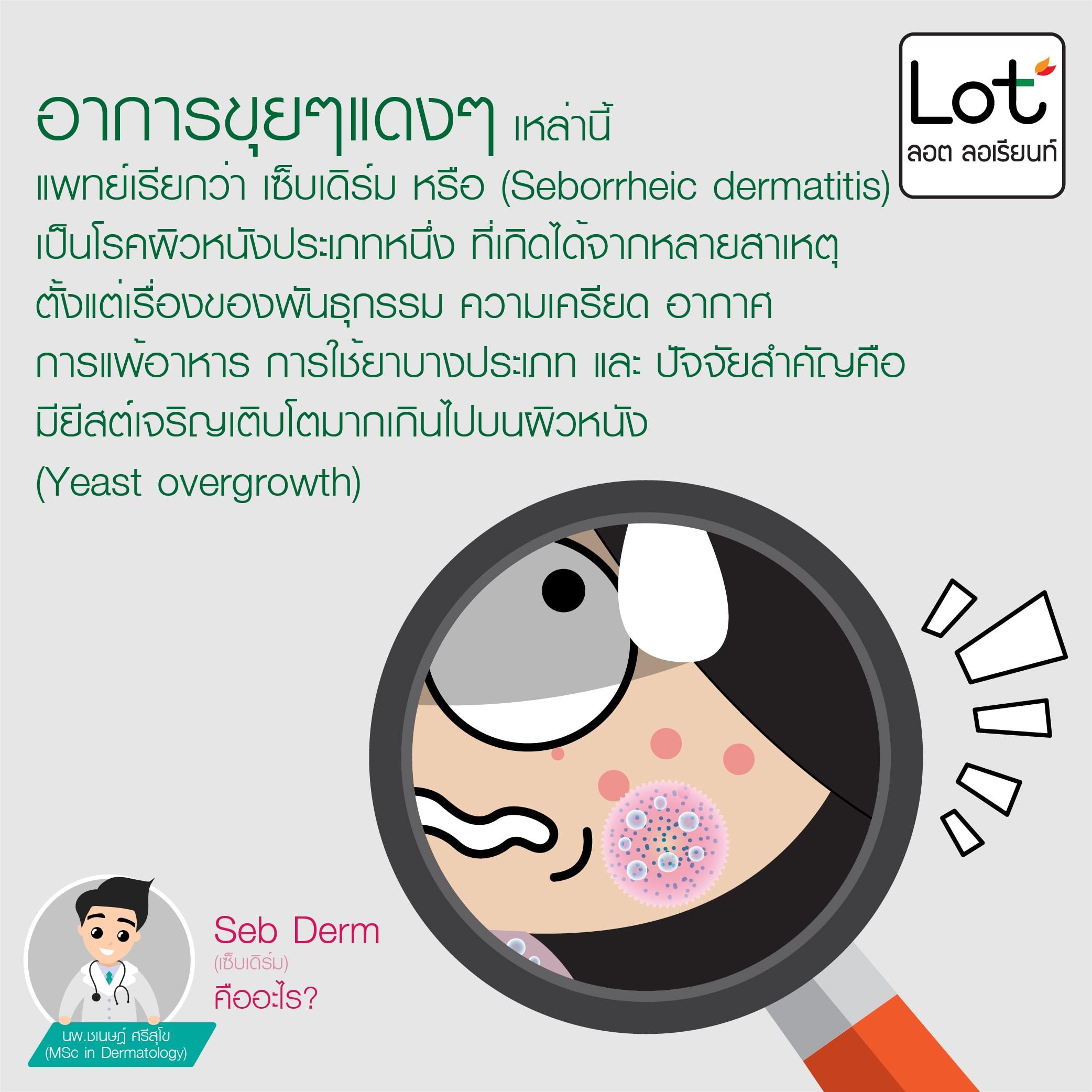 seborrheic dermatitis, เซ็บเดิร์ม, ลอต ลอเรียนท์